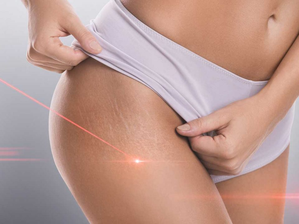 Cellulite e dieta chetogenica